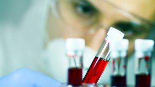 Thrombose: 5 points pour fluidifier le sujet