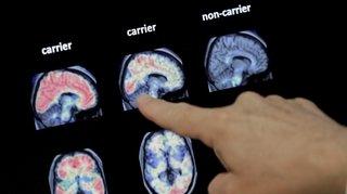 Santé: attente anxieuse pour les malades d'Alzheimer en Suisse