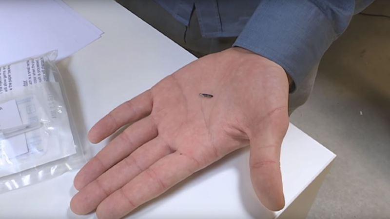 Etats-Unis: une société va implanter une puce électronique à ses employés