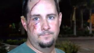 Floride: un homme attaqué par un ours sur le pas de sa porte!
