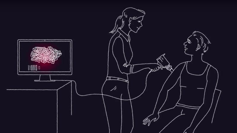 Santé: un ordinateur meilleur que les dermatologues face au dépistage du cancer de la peau