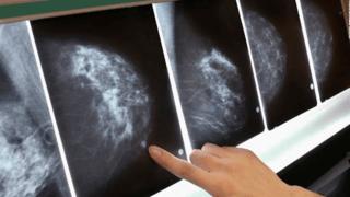 Santé: certains cancers pourront être vaincus sans chimiothérapie