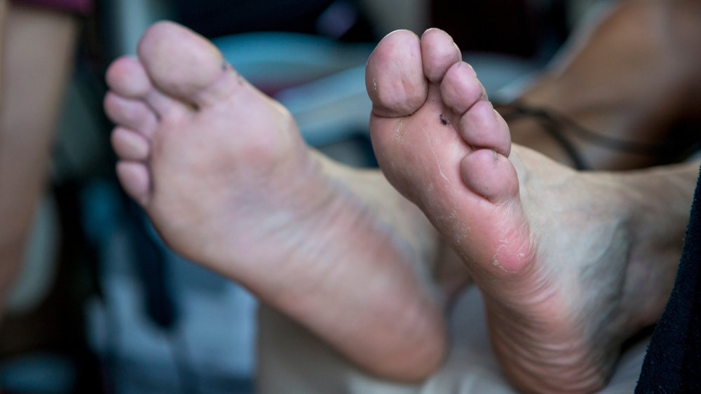 soigner ses pieds