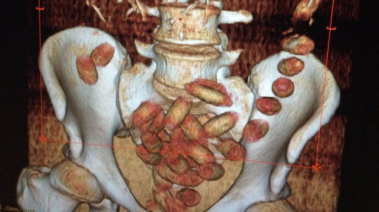 Bienne: un homme arrêté avec 1,5 kilo de cocaïne dans le ventre