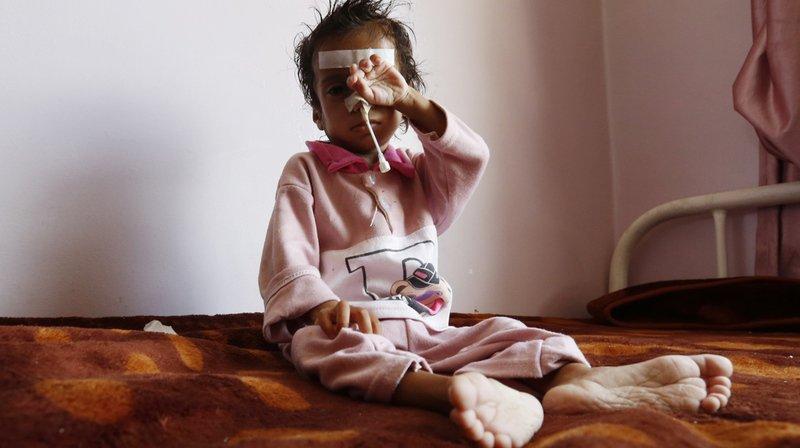 """L'Unicef a dénoncé à plusieurs reprises l'impact dévastateur du conflit sur les civils. """"Toutes les dix minutes, un enfant meurt en raison de malnutrition et de maladies pouvant être évitées""""."""