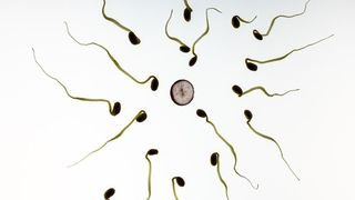 La mauvaise qualité du sperme des Suisses inquiète les chercheurs