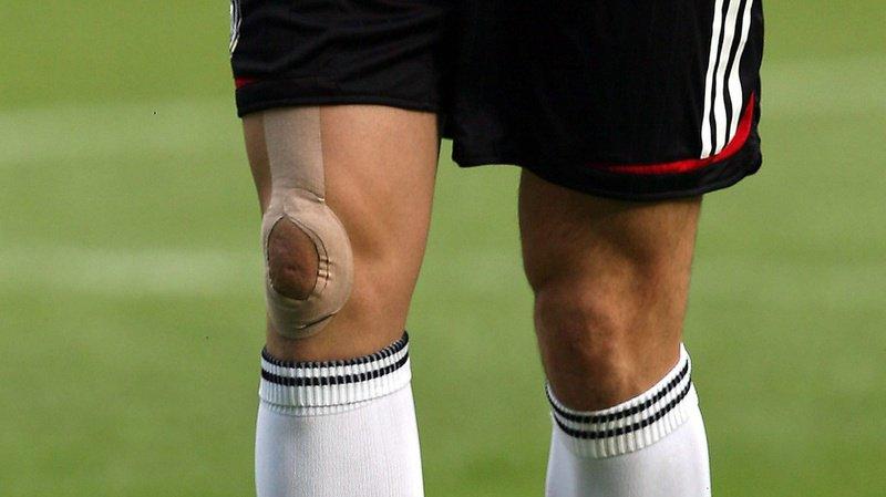 Les personnes qui possèdent ce ligament ont un risque nettement plus élevé de déchirure du ménisque externe.