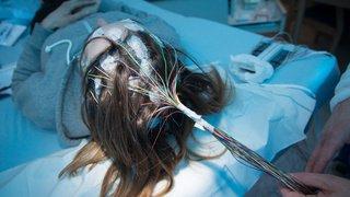 Epilepsie: les 70'000 malades de Suisse demandent à Berne de créer une réserve de médicaments