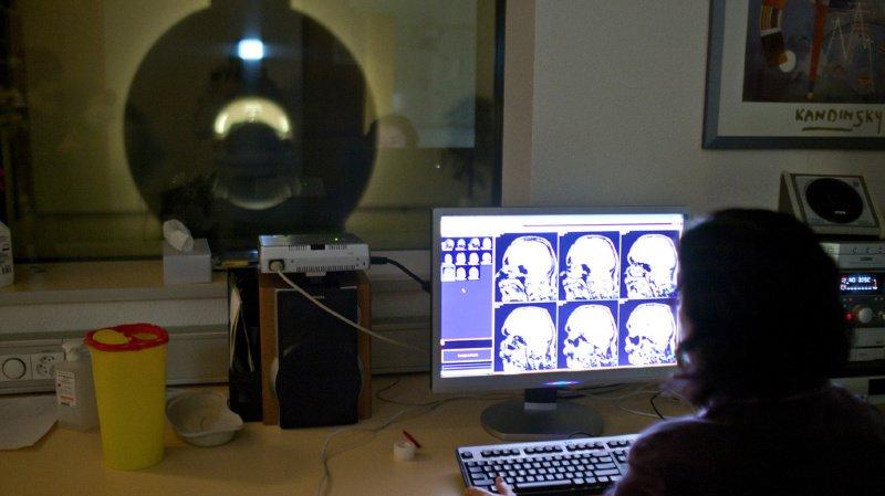 Des chercheurs suisses ont fait une découverte qui pourrait aider le cerveau à se régénérer après un accident vasculaire cérébral (AVC). (illustration)